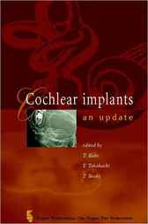 Cochlear Implants by T. Kubo