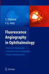 Fluorescence Angiography in Ophthalmology by Stefan Dithmar
