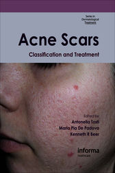 Acne Scars by Antonella Tosti
