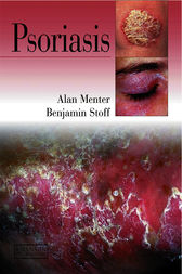 Psoriasis by M. Alan Menter