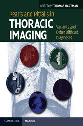 Pearls and Pitfalls in Thoracic Imaging by Thomas Hartman