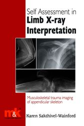 Self Assessment in Limb X-ray Interpretation by Karen Sakthivel Wainford