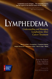 Lymphedema by American Cancer Society;  Sam Donaldson