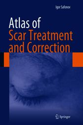 Atlas of Scar Treatment and Correction by Igor Safonov