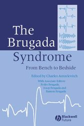 The Brugada Syndrome by Charles Antzelevitch