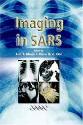 Imaging in SARS by A. T. Ahuja