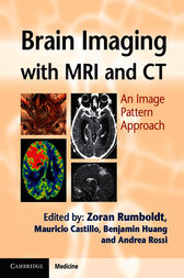 Brain Imaging with MRI and CT by Zoran Rumboldt