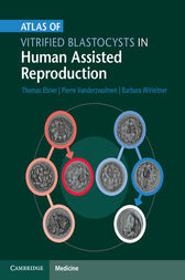 Atlas of Vitrified Blastocysts in Human Assisted Reproduction by Thomas Ebner