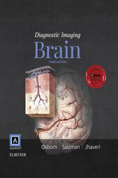 Diagnostic Imaging: Brain E-Book by Anne G. Osborn
