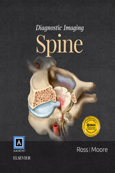 Diagnostic Imaging: Spine E-Book by Jeffrey S. Ross