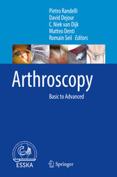 Arthroscopy by Pietro Randelli